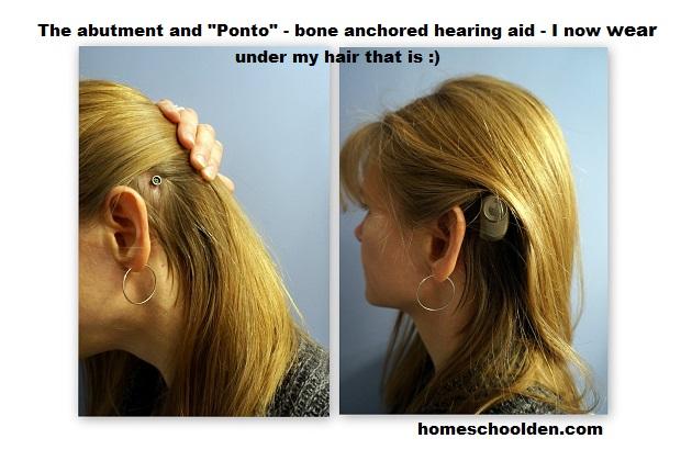 Ponto-BoneAnchoredHearingAid